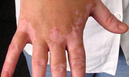 Vitiligo Disease